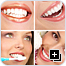 After Cosmetic Dentistry Collage